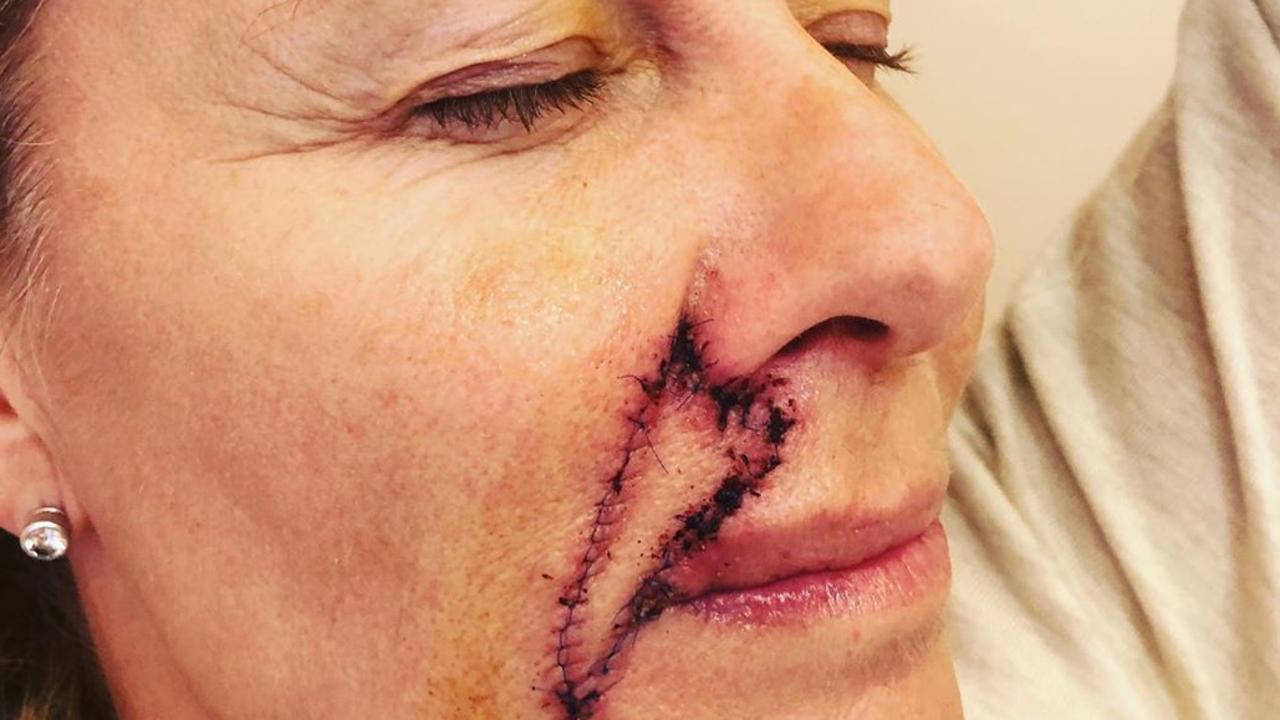 Deborah Hutton reveals her surgery scar.