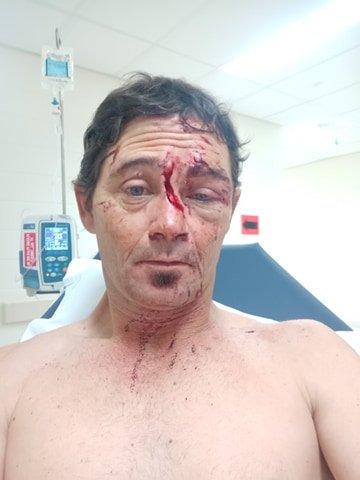 Daniel Mcalpine was glassed in Bundaberg.
