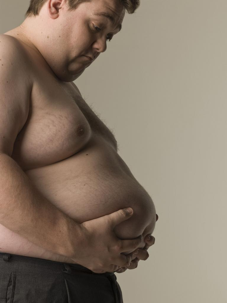 More than 50 per cent of Cairns residents are overweight or obese. Thinkstock
