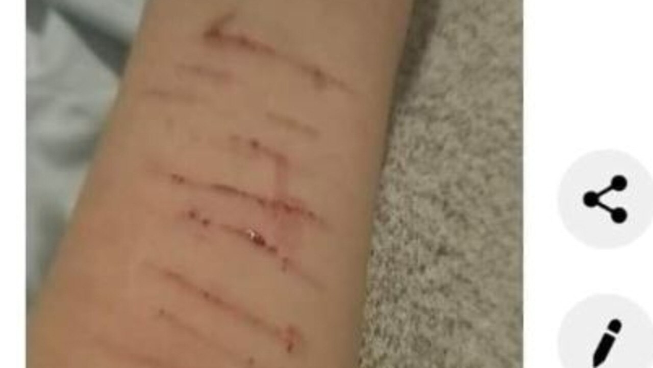 A Gold Coast teenager who was in foster care is now homeless - the cuttings on her arm has sparked concerns among those who had supported here.