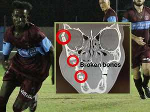 Soccer teen's horrific facial injury while scoring on debut