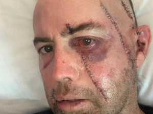 Father's face sliced open in freak Seaforth accident