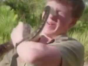 WATCH NOW: Robert Irwin bitten on face by snake
