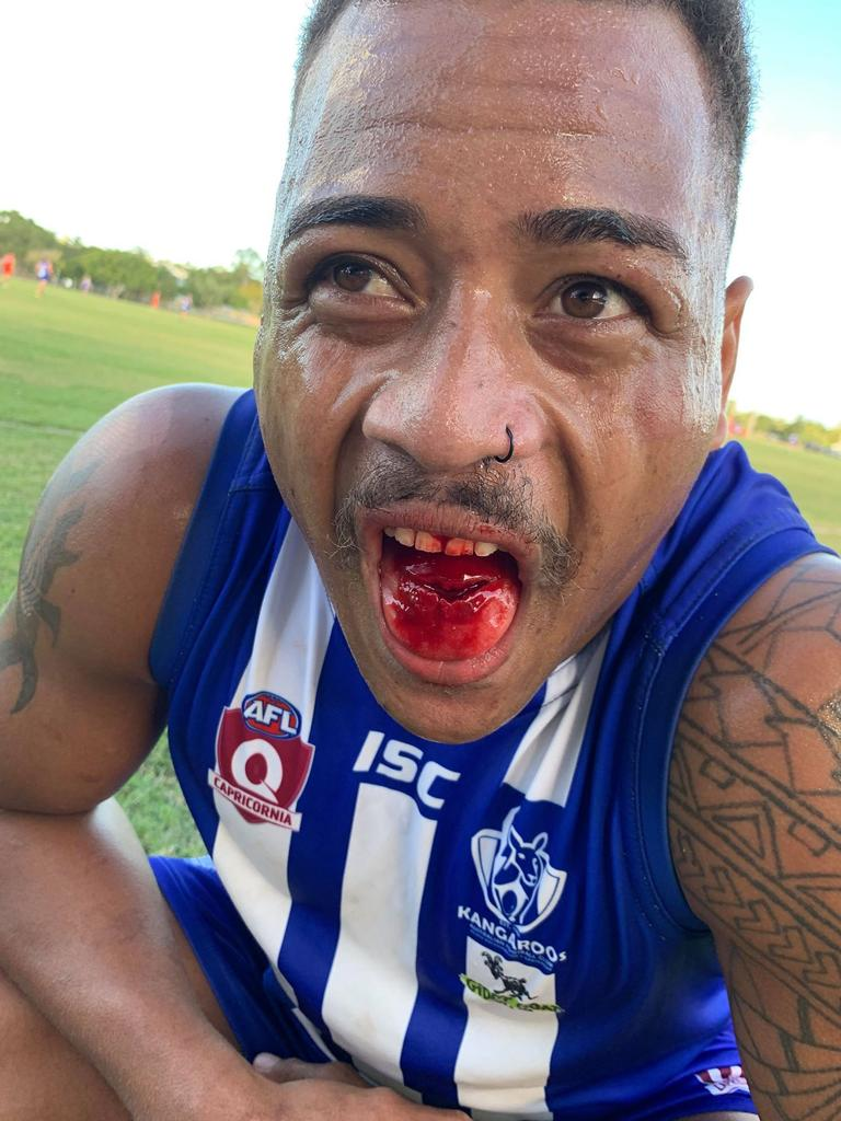 CQ Capras player Chalice Atoi almost bit through his tongue in his AFL debut game yesterday. Picture: Contributed
