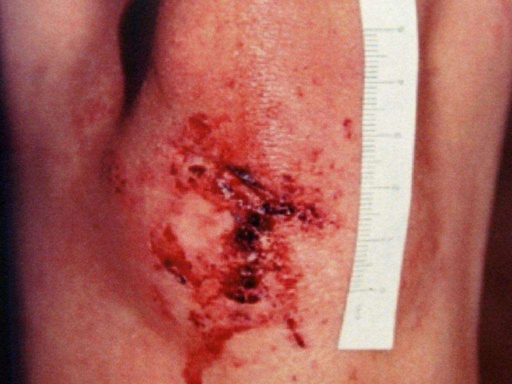 A police photograph of an injury to the leg of Joanne Lees following the assault.