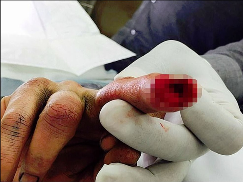 The photo of Johnny Depp's severed finger. Picture: Supplied