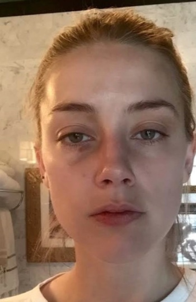 This photo of Amber Heard was shown in court, with injuries said to have been sustained during an incident involving Johnny Depp. He has denied the allegations.