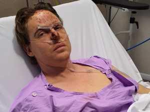 Cycle shop owner broken, battered by Bruce Highway crash