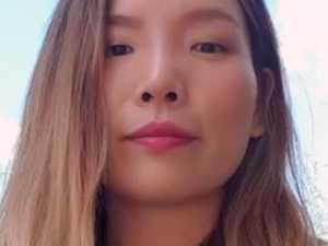 Dami Im 'in shock' after dog attack