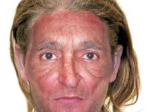 Police still on the hunt for Mungindi face stabber