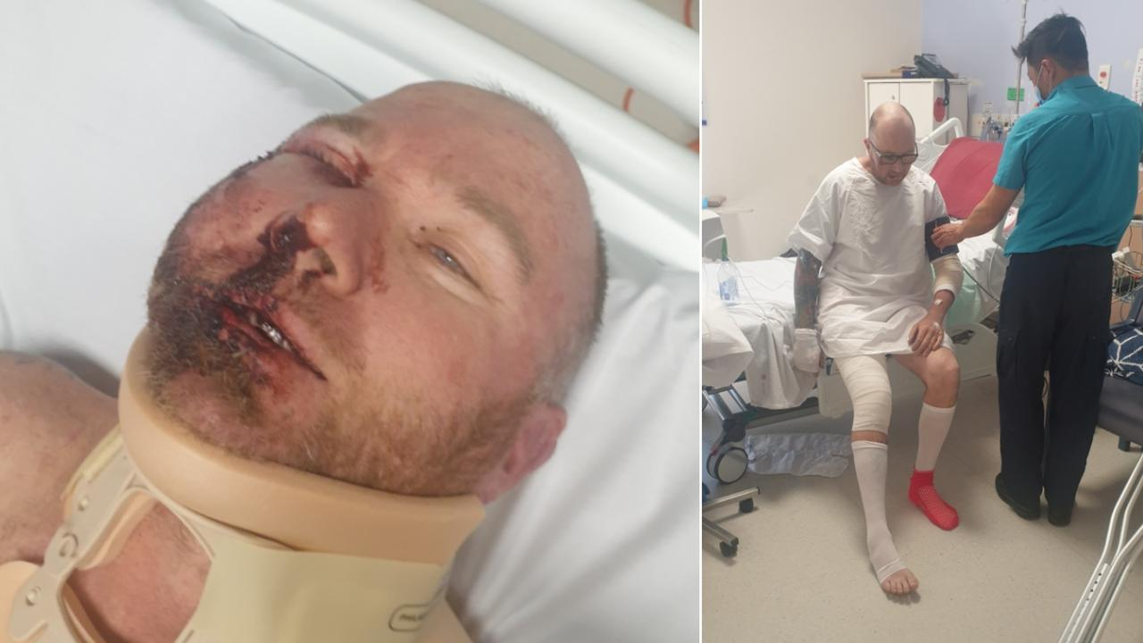 Garry Fielding has urged fellow tradies to be safe after a workplace accident left him seriously injured.