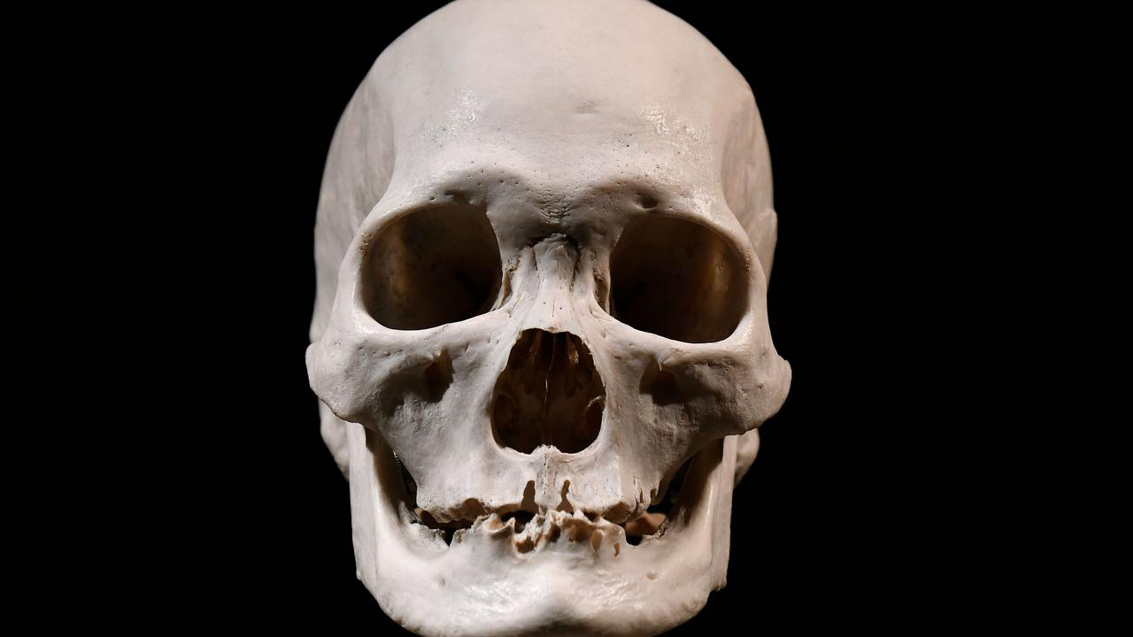 """An Indigenous woman's skull, allegedly found in the 1970s and taken as a """"souvenir"""", has been handed in to police."""