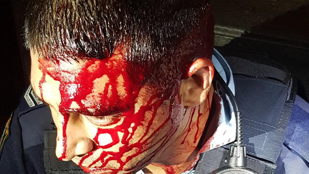 One officer was allegedly slashed across the head and shoulder. Picture: NSW Police