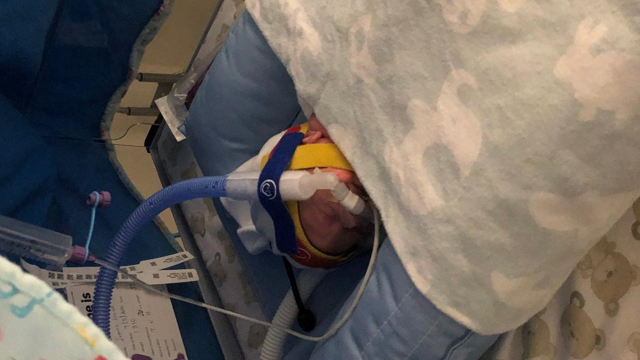 Doctors did not think Dysart baby Callen Schofield would survive more than two hours after birth. Picture: Contributed
