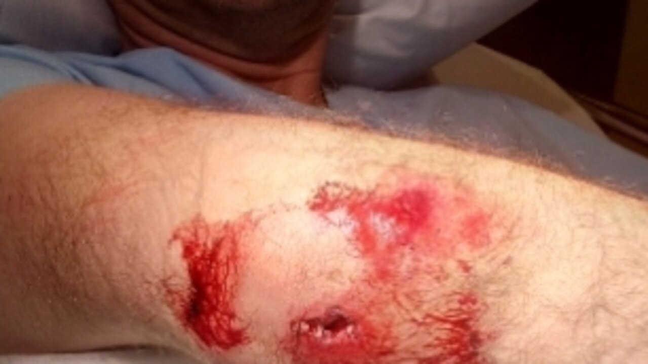 Cyclist's fractured elbow after being pushed off his bike on the Gold Coast. Supplied