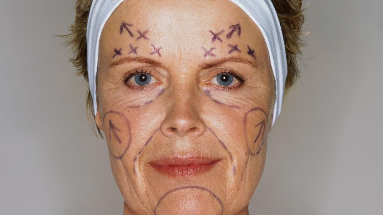"""Cosmetic and plastic surgery has become """"the new norm""""."""