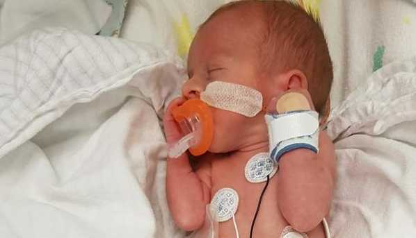 Oliver Glover was born without a large portion of his small intestine. Picture: Kelly Glover