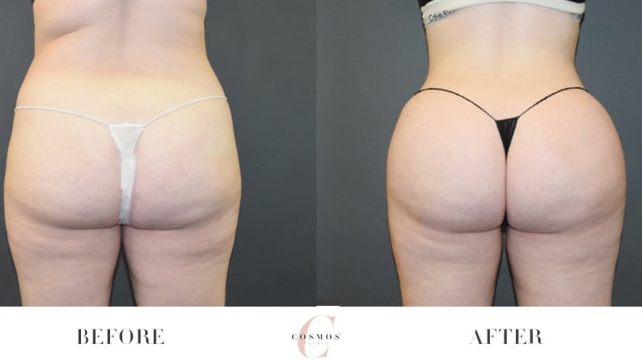 Before and after Brazilian butt lift photos on the Cosmos Clinic website. Picture: Supplied