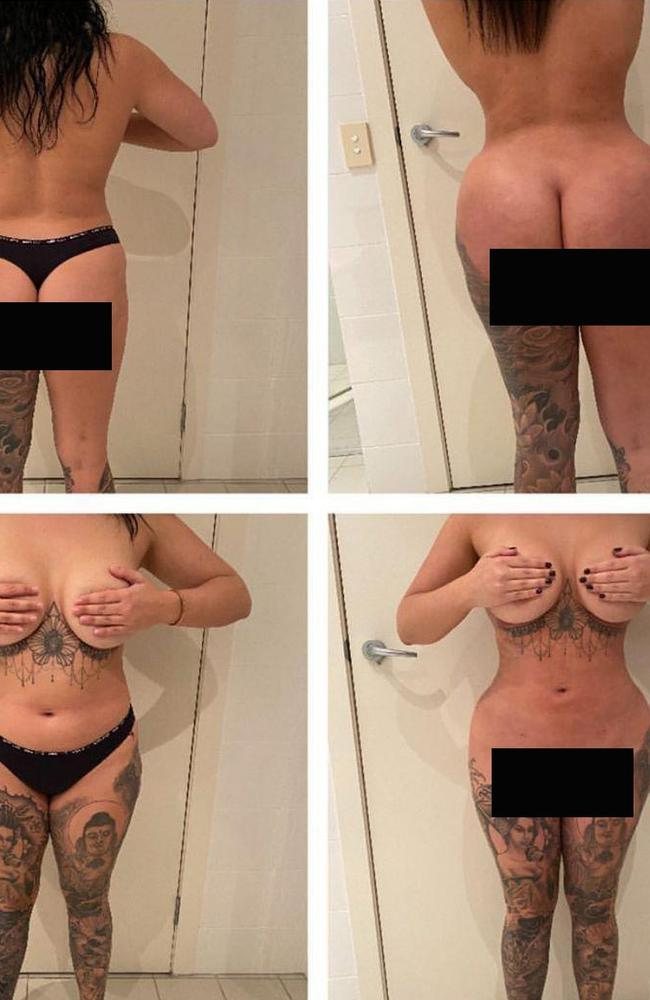 Renee Gracie's before and after photos from her Brazilian butt lift.
