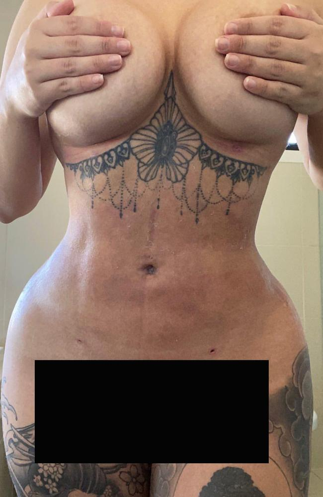 Renee Gracie's body after the BBL surgery six weeks ago.