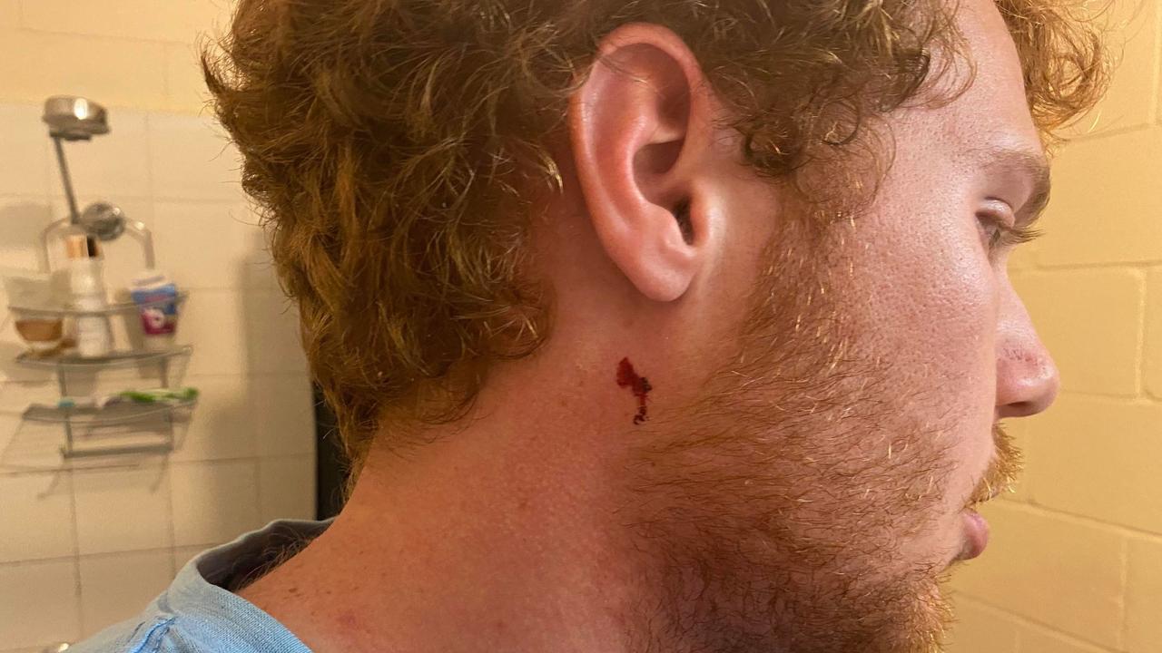 Rhys Davis shows off his injuries.