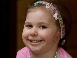 Girl born without ears just wants to wear earrings