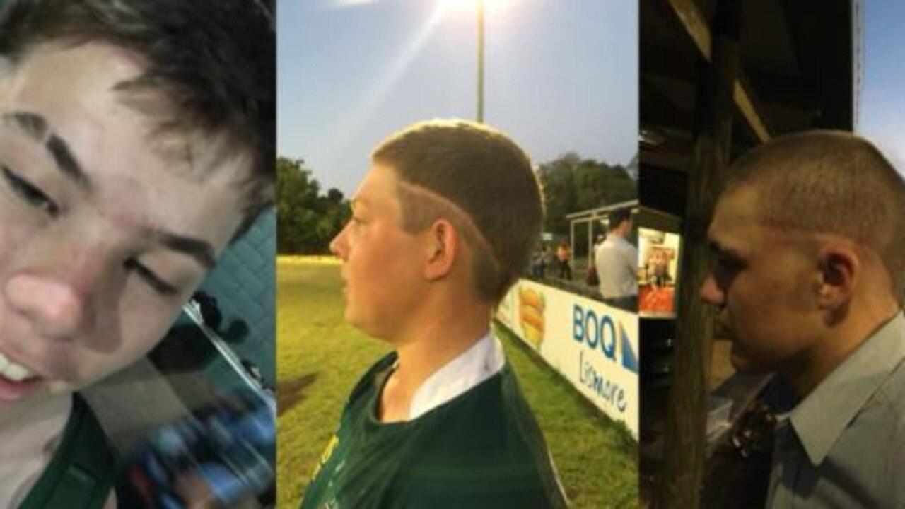 Lismore City Rugby Club have honoured their late teammate, Eddie Allen, by cutting their hair to resemble his haircut.