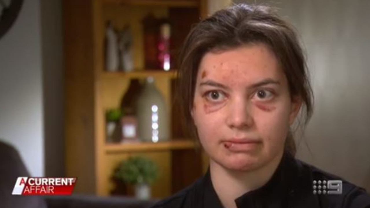 Danae Lomen has been left with horror injuries after being hit by a cyclist. Picture: Channel 9/A Current Affair
