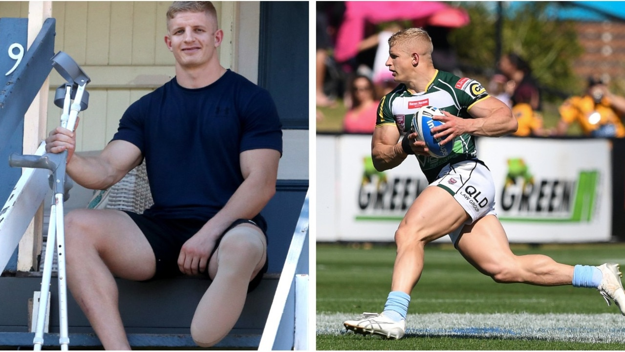 When Rogan Dean's foot was ripped off in a horror motorcycle crash, surgeons gave him two options. For the rugby league player the choice was easy.
