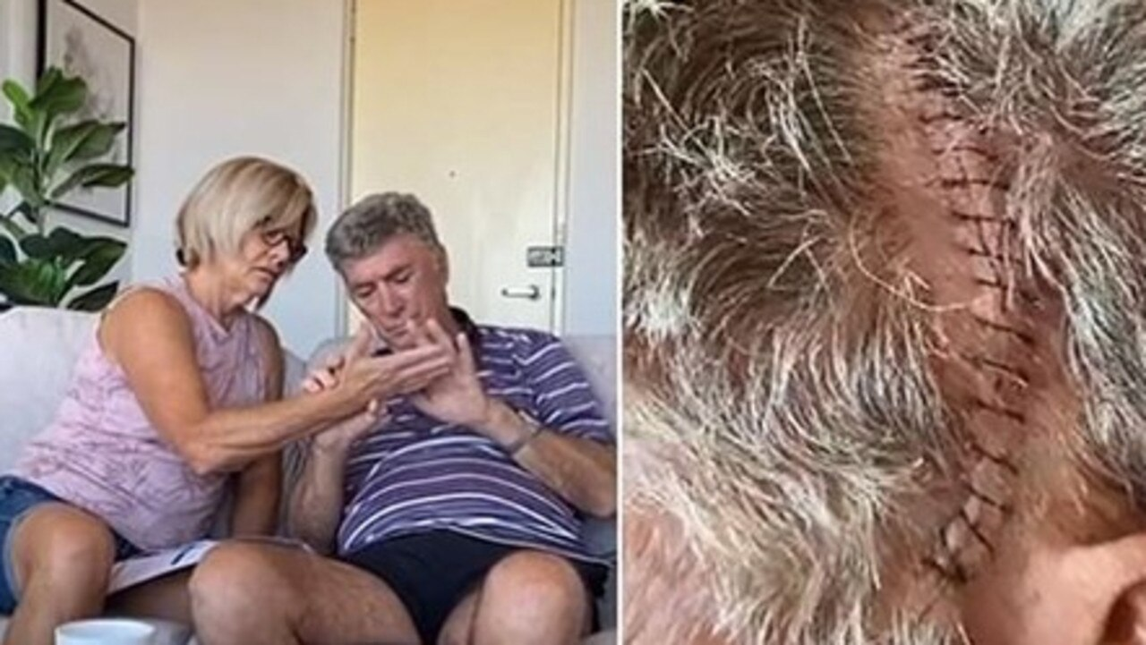 Prime Minister Scott Morrison has taken up the plight of a man dying with brain cancer who has been forced to recover from major surgery holed up in a hotel.