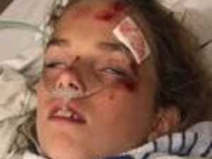 Mum's warning after freak accident nearly kills her daughter