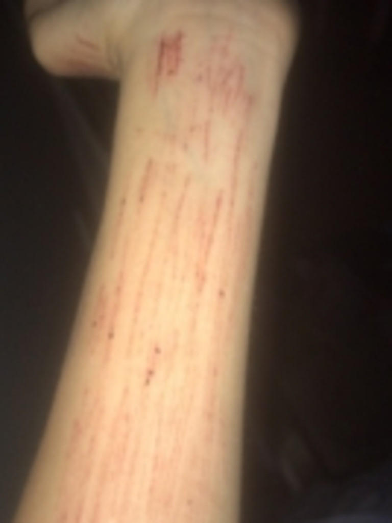 The girl has shared photos of her self harm. Photo: Supplied