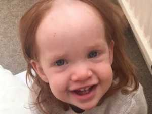 Toddler gets hold of hair removal cream
