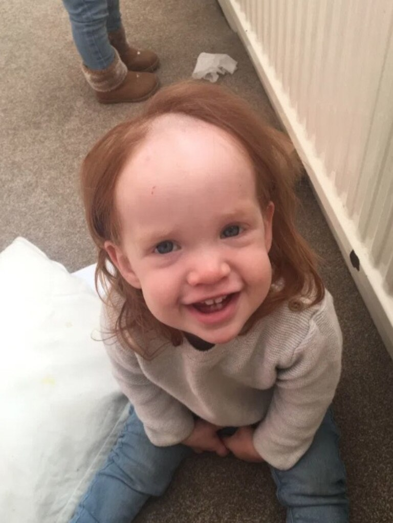 The toddler was left looking like Pennywise the Clown. Picture: Kennedy News