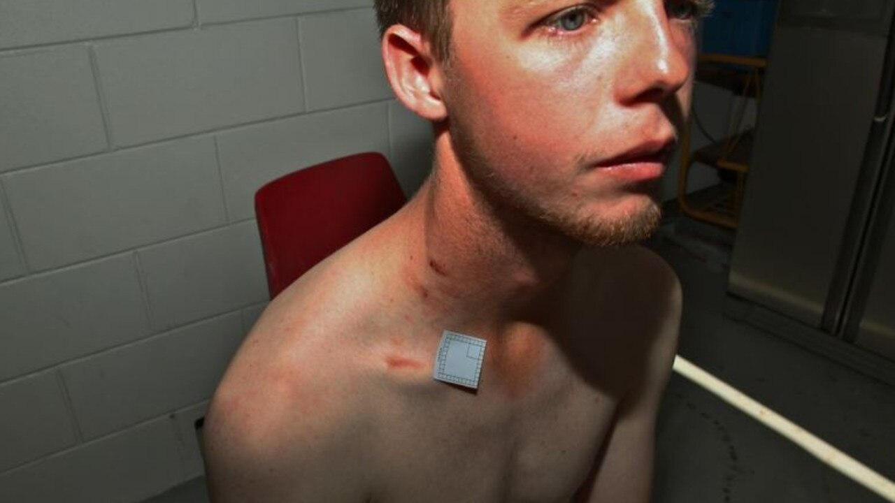 Photos show Dean Webber's injuries after the Alva Beach stabbing. Photo: QPS