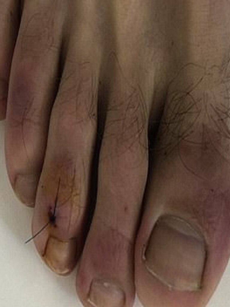 It is when toes turn purple from the disease. Picture: Journal of the American Academy of Dermatology