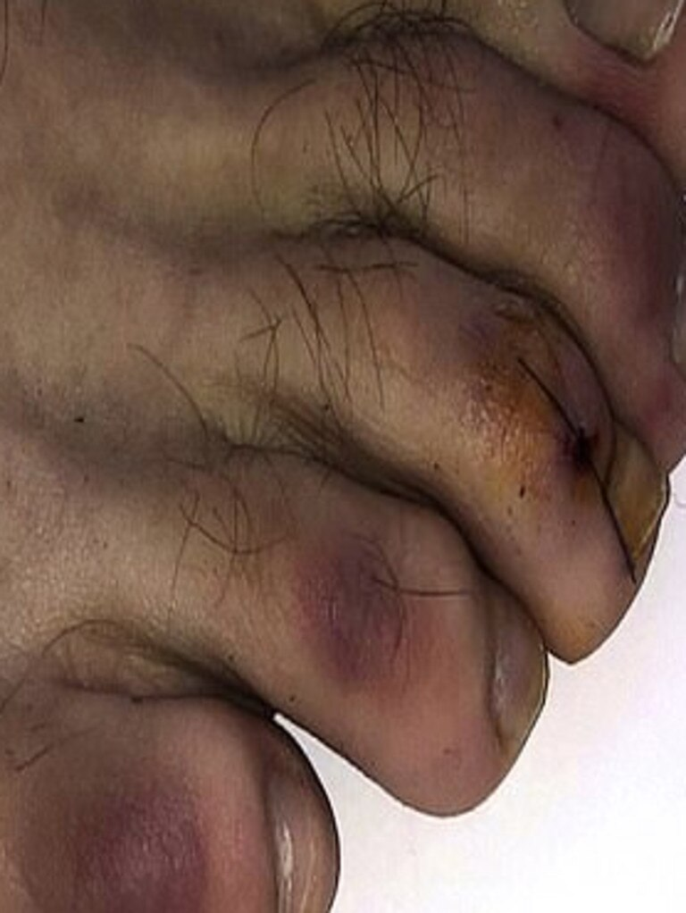 Inflammation of the toes which is caused by the virus can lead to red or purple skin, swelling and chilblain-like blisters. Picture: Journal of the American Academy of Dermatology