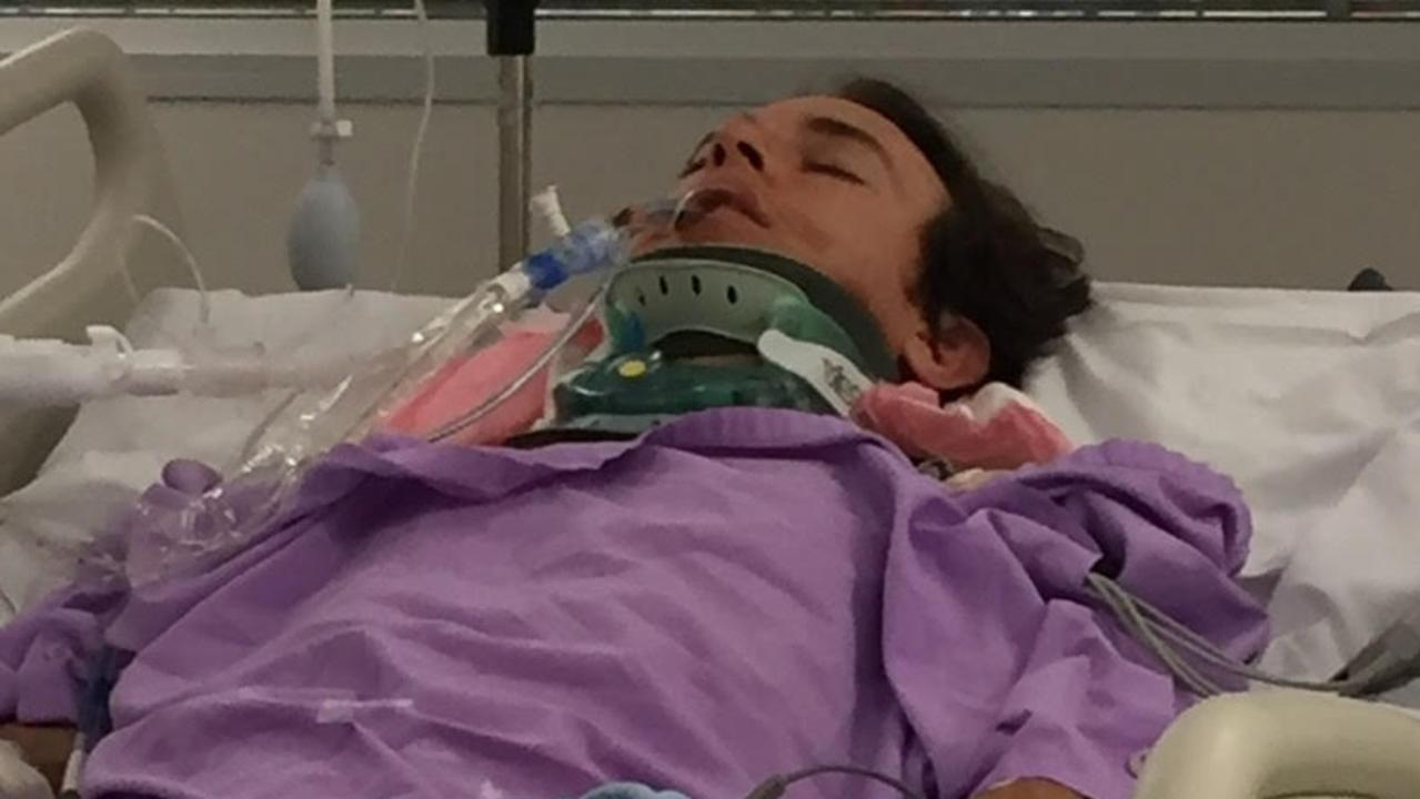 Matthew Donovan in a coma at the Gold Coast University Hospital after he was attacked at Surfers Paradise.