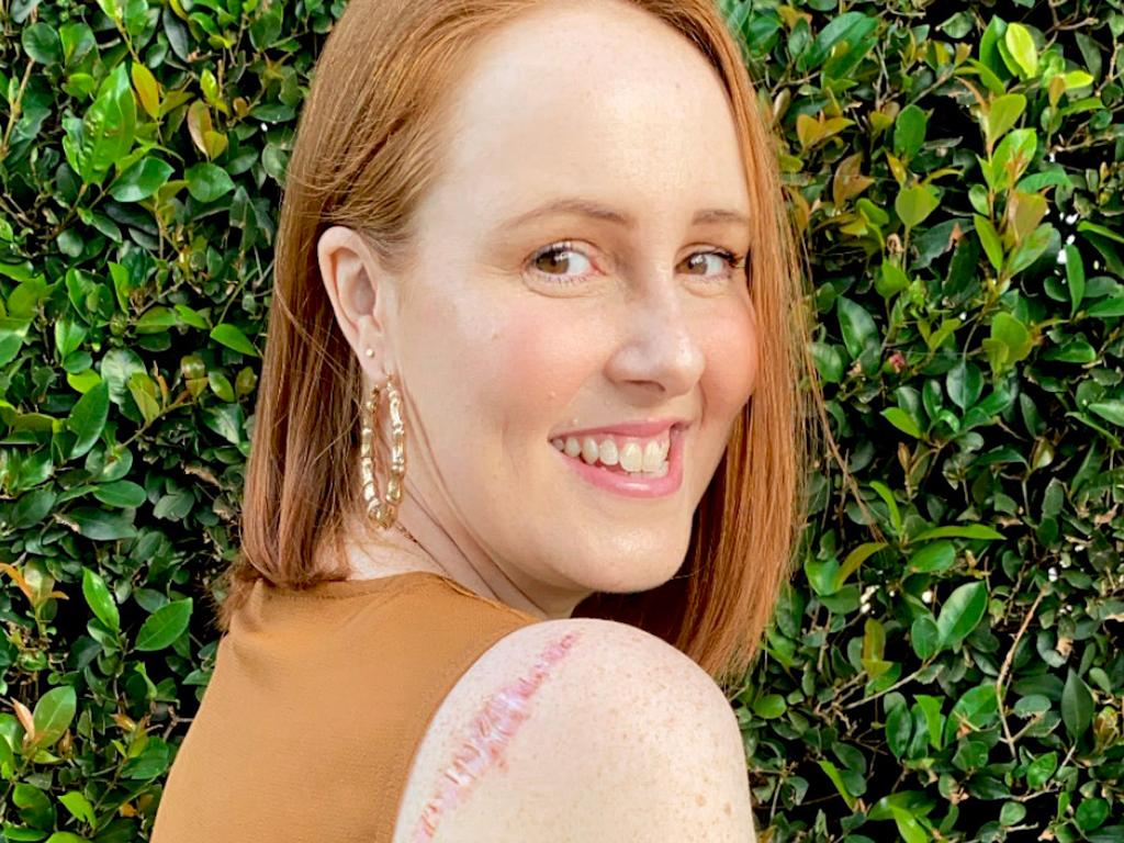 She had it removed – then two-and-a-half years later, she noticed a lump near the initial melanoma spot. Picture: Supplied