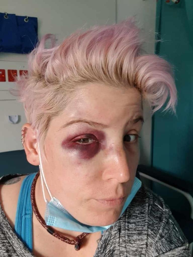 Victim Casey Freeman, 35, was bashed by a man at a St Kilda bar.