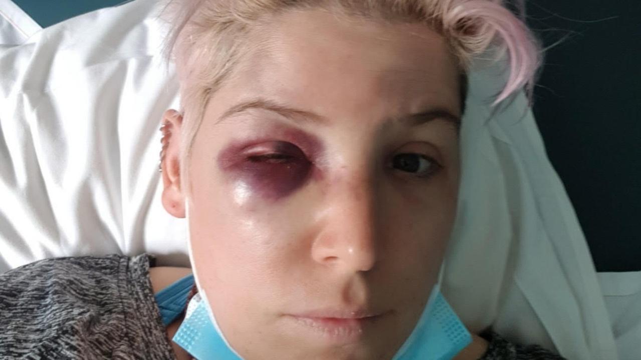 Victim Casey Freeman, 35, was bashed at a St Kilda bar.