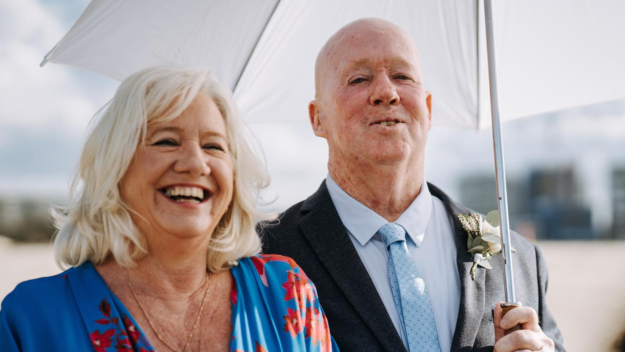 Brett Gibbs, 57, has finally gained confidence to retake his wedding photos after 30 years of having skin cancers removed from his face, head and neck. Picture: Supplied