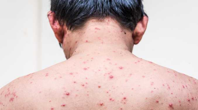 Chickenpox detected at Clarence Valley school