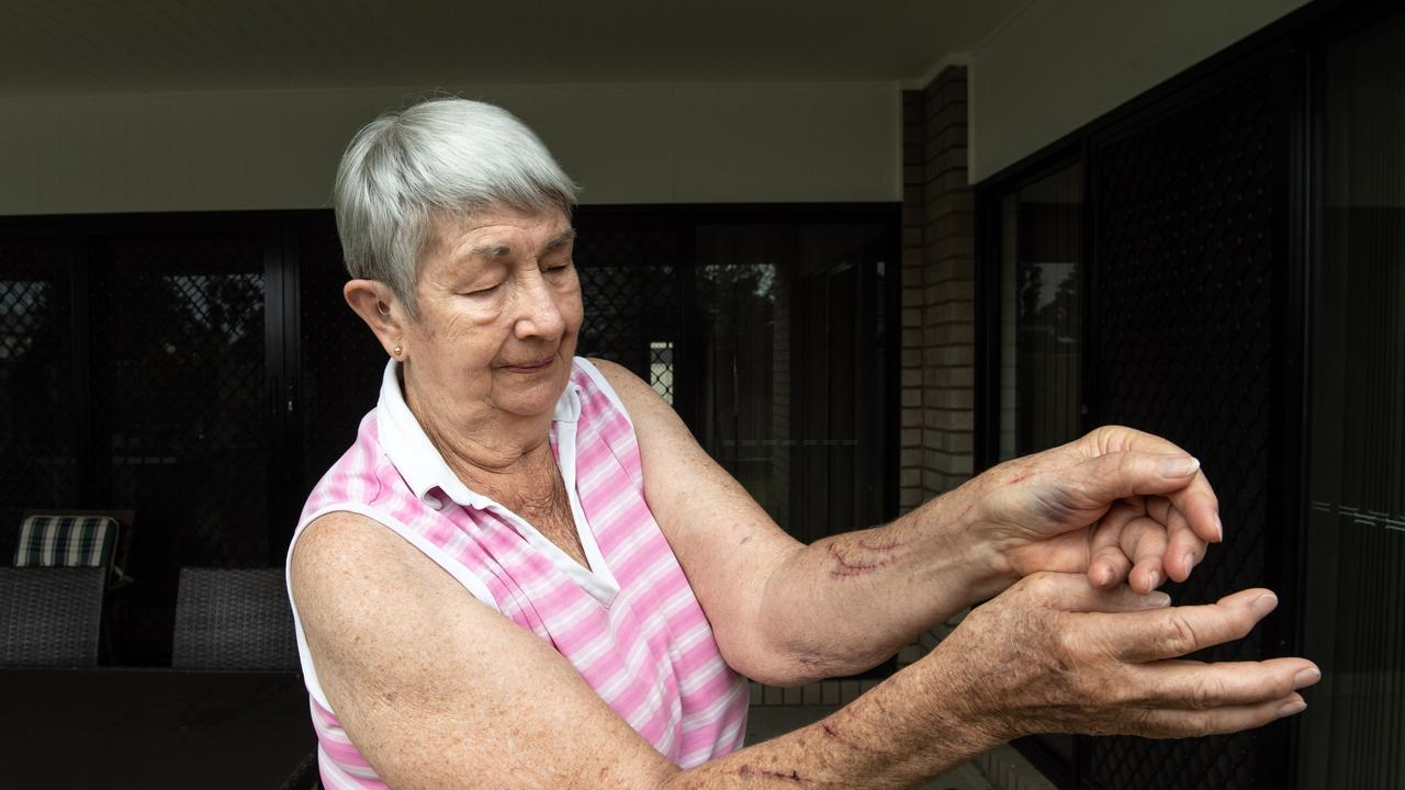 Dorothy Bloxham in her backyard where she was attacked by a kangaroo this morning. Photo: Adam Hourigan