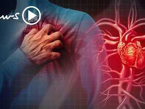 Heart attack statistics Australia: Cardiac arrest signs and symptoms