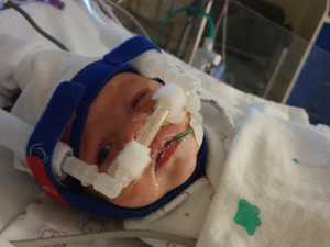 MIRACLE BABY: Tully's incredible tale of survival