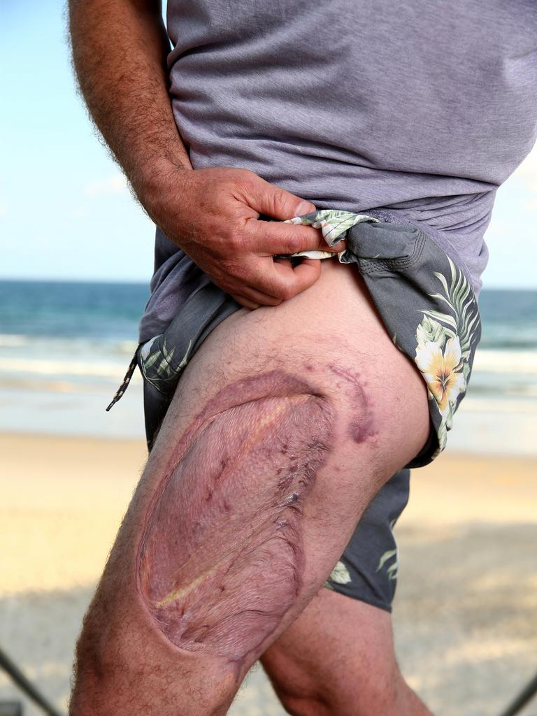 Edwardes with the scars left by a shark attack. PICTURE: Adam Head
