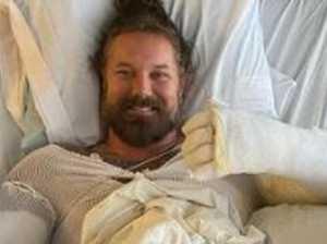 Singer hospitalised with horrific burns