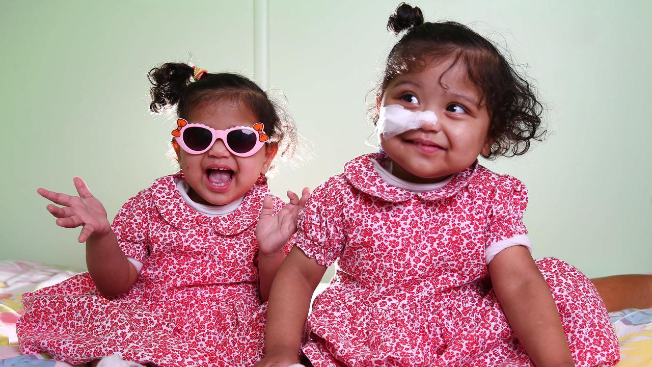 Seventeen-month-old twins Clarita and Emma Maglaya have only just left hospital after being born with a rare genetic condition.
