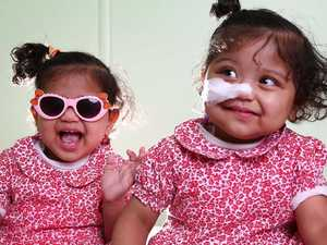 Twins home from hospital after 17 months
